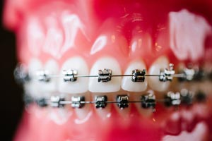 Close view of traditional metal braces