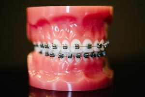 Traditional braces are still a great, affordable option for treating a variety of orthodontic issues: gaps, crowding, overbites, or underbites. The brackets we use nowadays are a good bit smaller than the tooth shackles of yesteryear and use a simple door-system to hold the wires in place, which shortens appointment time and makes treatment more effective and way less painful than it used to be. Really, a touch of silver in your grin may be just what you're looking for.