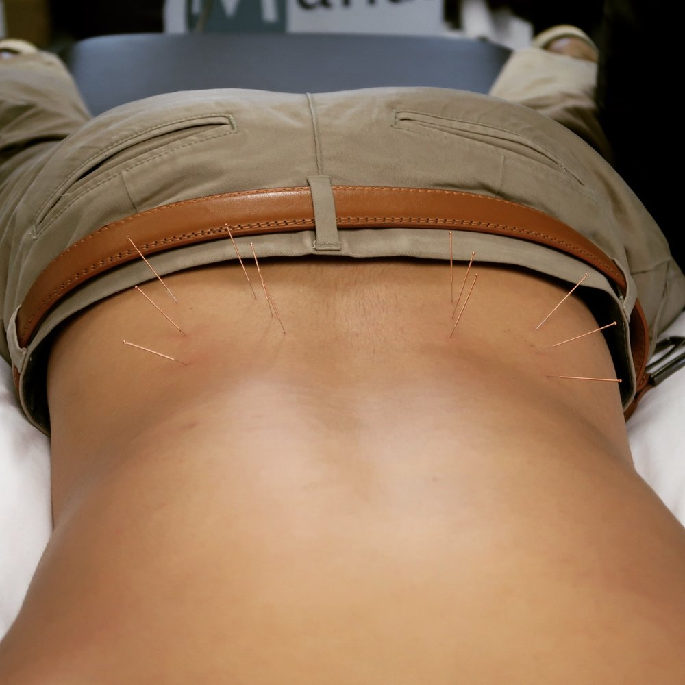 Dry needling or medical acupuncture might be used during your osteopathic consultation. Medical acupuncture can reduce muscle tension, improve blood flow and reduce pain. The picture above shows dry needling to the Lumbar Erector Spinae and Quadratus Lumborum muscles.