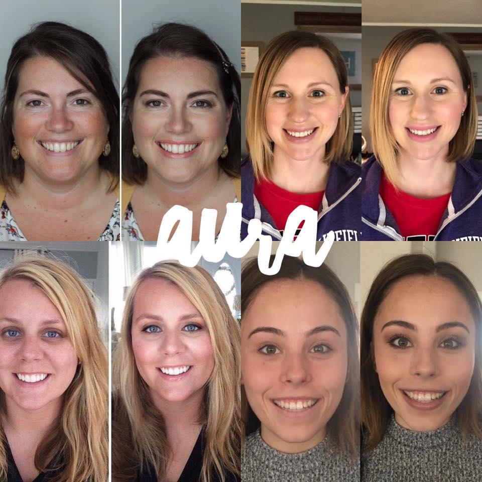 Maskcara Aura Before and Afters