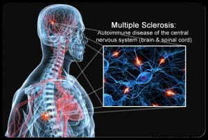 Pain Associated with Multiple Sclerosis