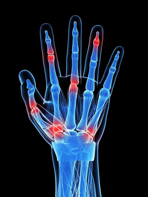 Hand Pain (Trigger Finger)