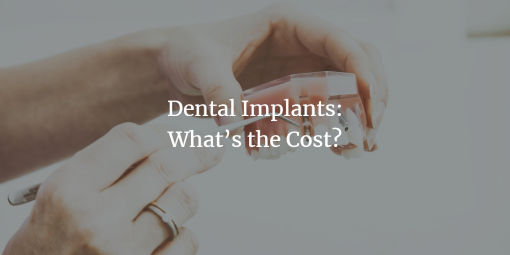 dental-implants-whats-the-cost.png