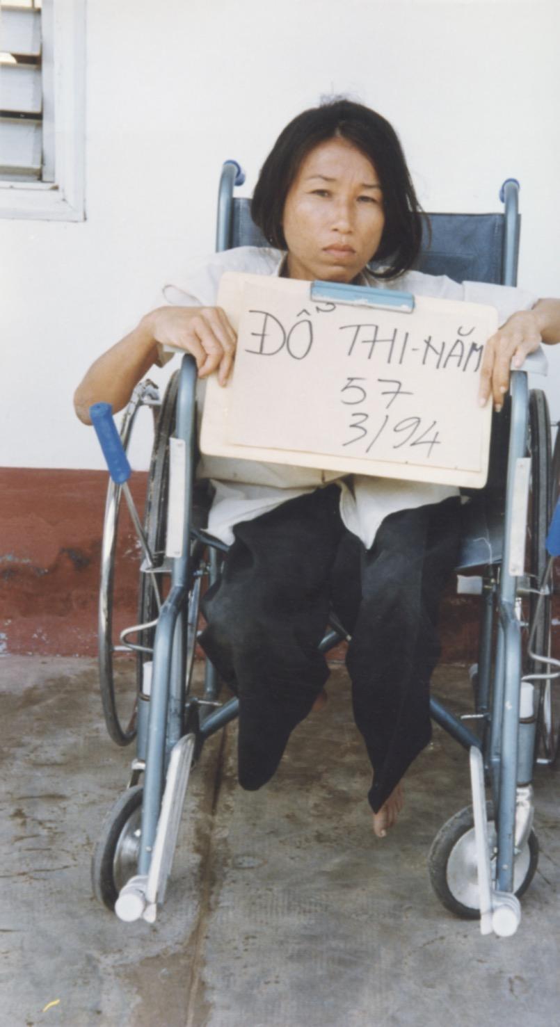 VNAH 1994 Amputees - 10.jpeg
