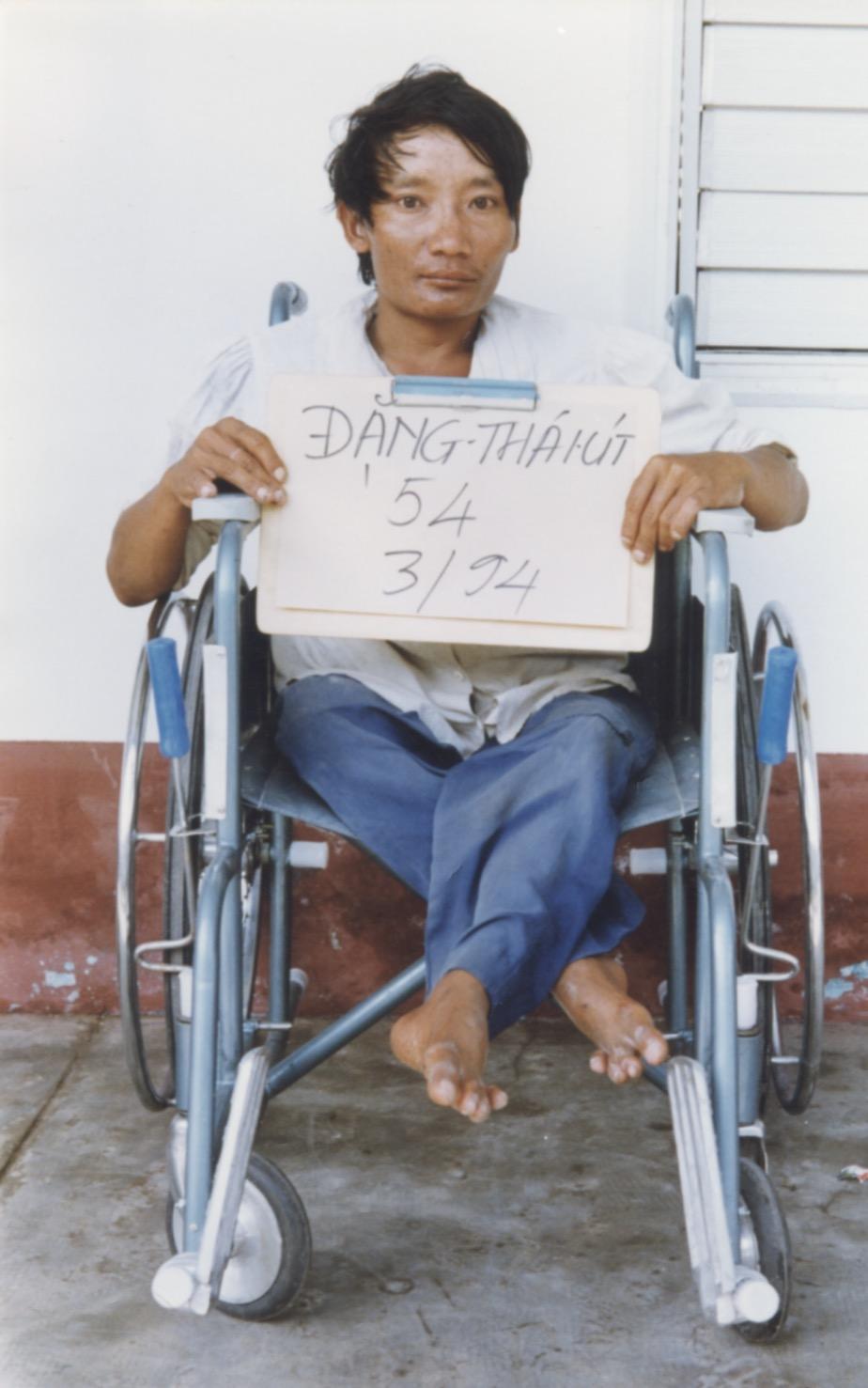 VNAH 1994 Amputees - 11.jpeg