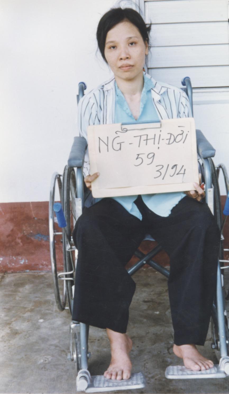 VNAH 1994 Amputees - 13.jpeg