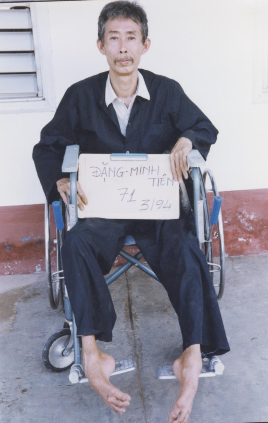 VNAH 1994 Amputees - 23.jpeg