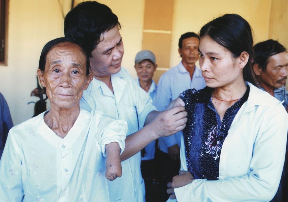 VNAH Prosthetic Outreach July 2010 - 10.jpeg