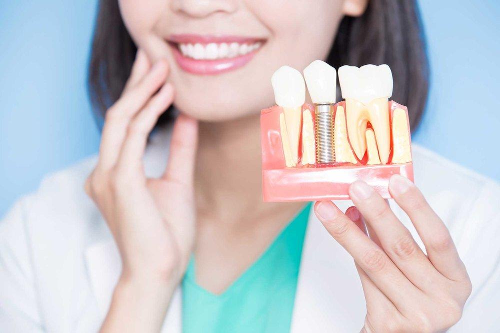 dental-implants-by-malan-family-dentistry.jpg