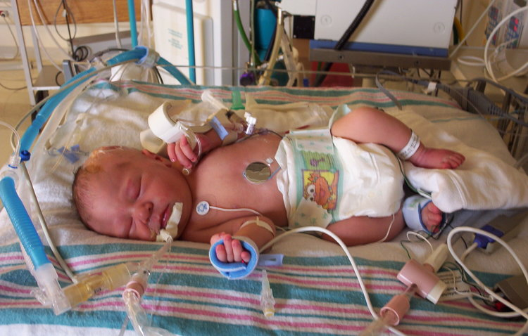 Life in the NICU
