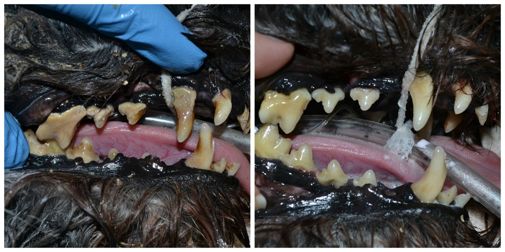 Dental Cleaning: Before & After