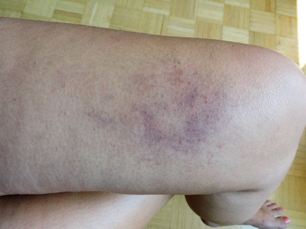bruise4.jpg