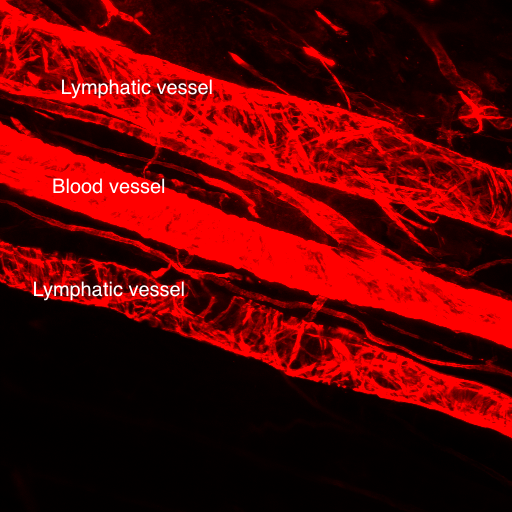 A whole mount of the popliteal lymphatic vessels that is stained for smooth muscle actin. Image courtesy of Echoe Bouta and Tim Padera, Massachusetts General Hospital.