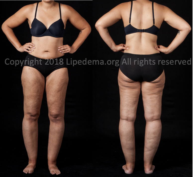 Fat buildup from buttocks to ankles. For more images go  here .
