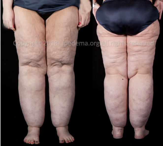 Large extrusions of fat tissue causing buildup from buttocks to ankles. For more images go  here .