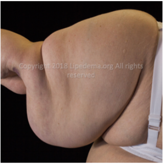 Fat buildup in entire arm (rear view). For more images go  here .