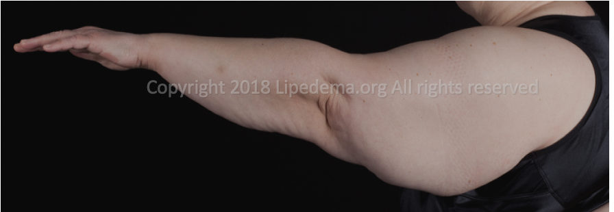 Fat buildup in upper arms (side view). For more images go  here .