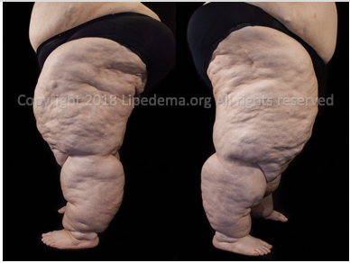 Large extrusion of fat tissue on legs with progression to lipolymphedema. For more images go  here .