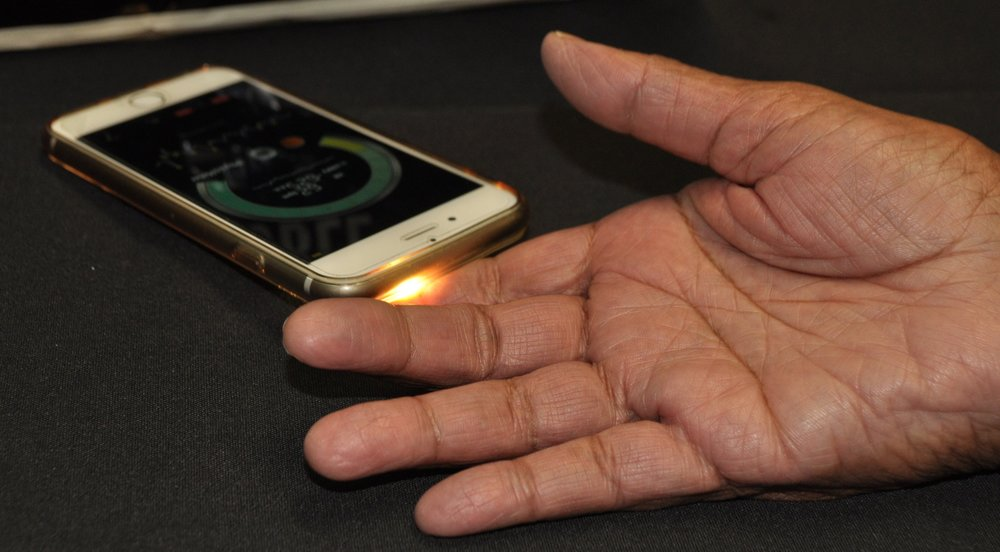 Have your pulse volume taken from your finger… -