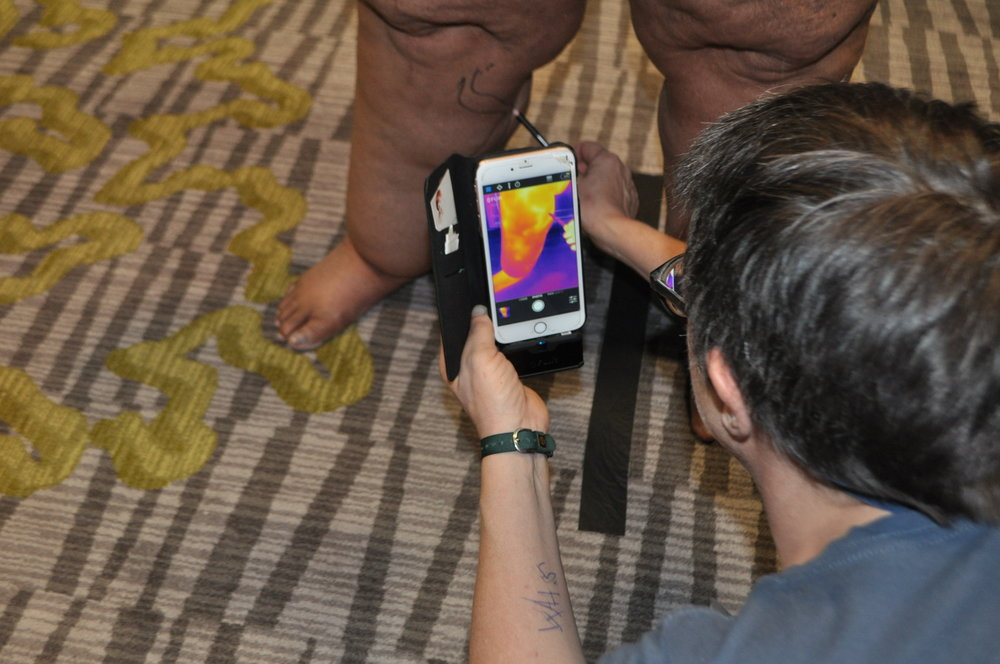 Full-body thermography -
