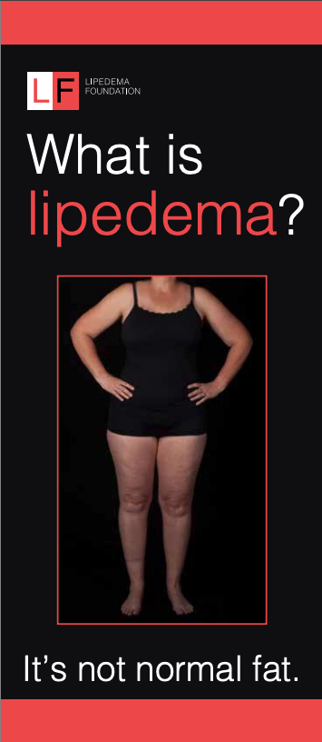 >10,500 Lipedema Brochures given out. Order yours by clicking on the image.