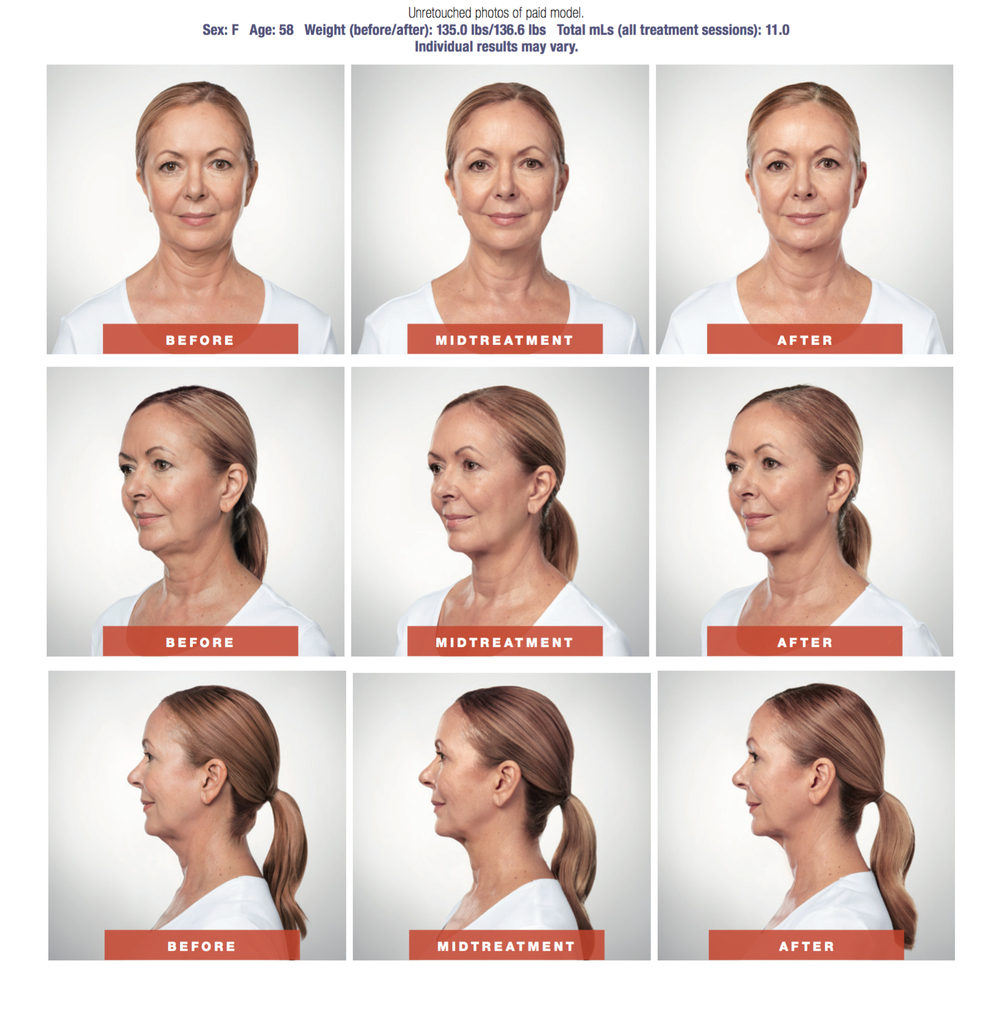 Kybella Is An Amazing Injection That Permanently Dissolves Fat Cells In The  Chin For A More Defined Jawline And Contour Kybella Is Available To Both  Men