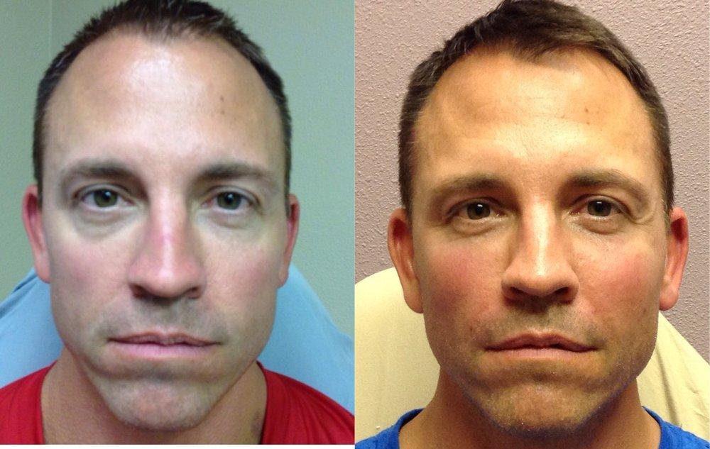 Bellafill Full Face & Under Eye | 10 Months Later