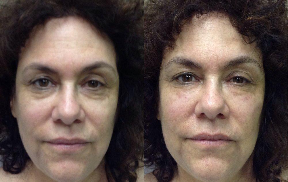 Bellafill Under Eye | 7 Months Later