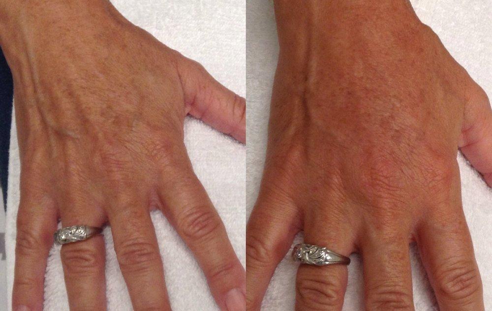 Bellafill Hand Immediate After