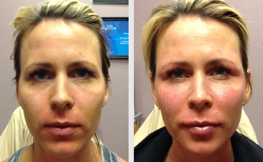 Vampire Face Lift® | Immediate After