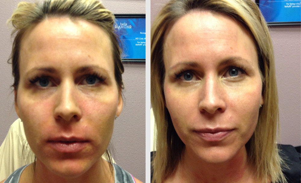 Vampire Face Lift® | 2 Weeks Later