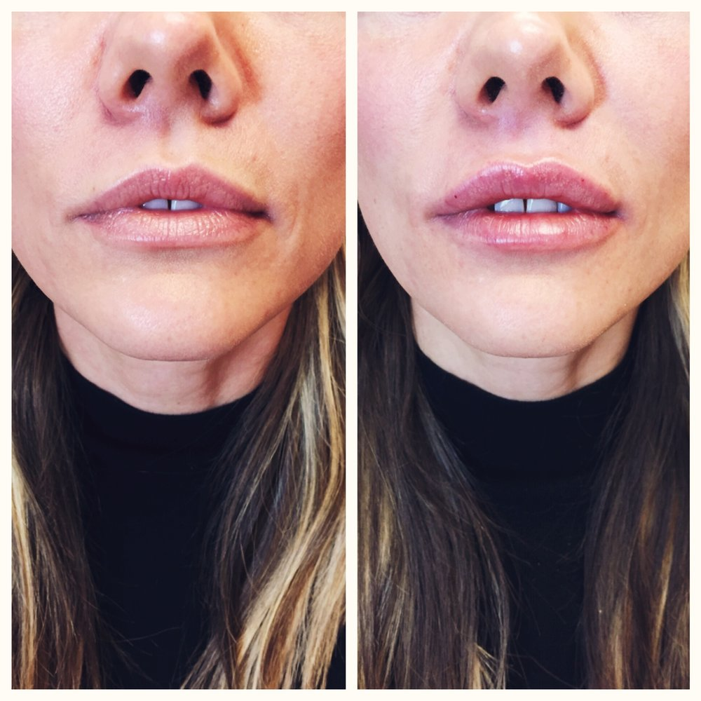 Before & After of a first-time client using 1 syringe of Juvederm fillers to achieve a plump, natural pout.