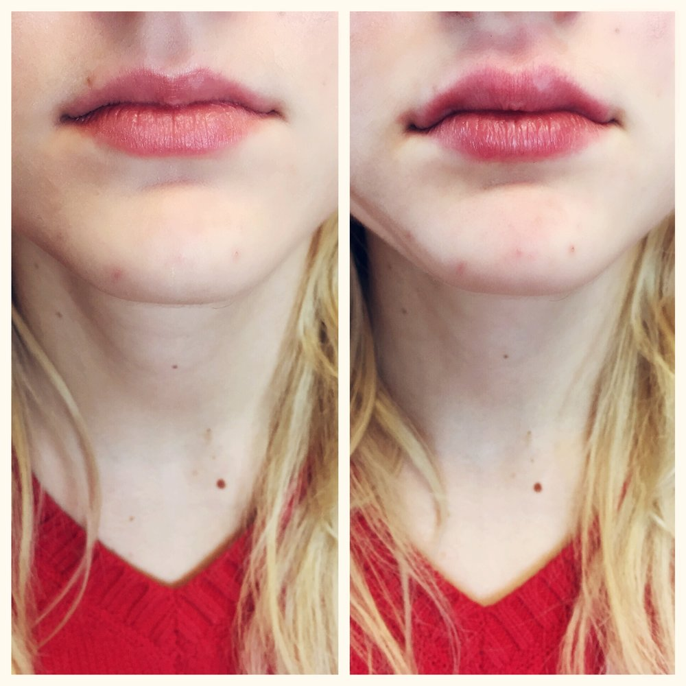 The Before and After of a first-time medical client. Doctor Cynthia Cote used one syringe of Juvederm for these naturally plump lip fillers.