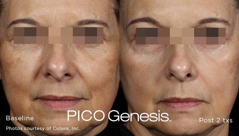 enlighten_pico genesis_7.jpg