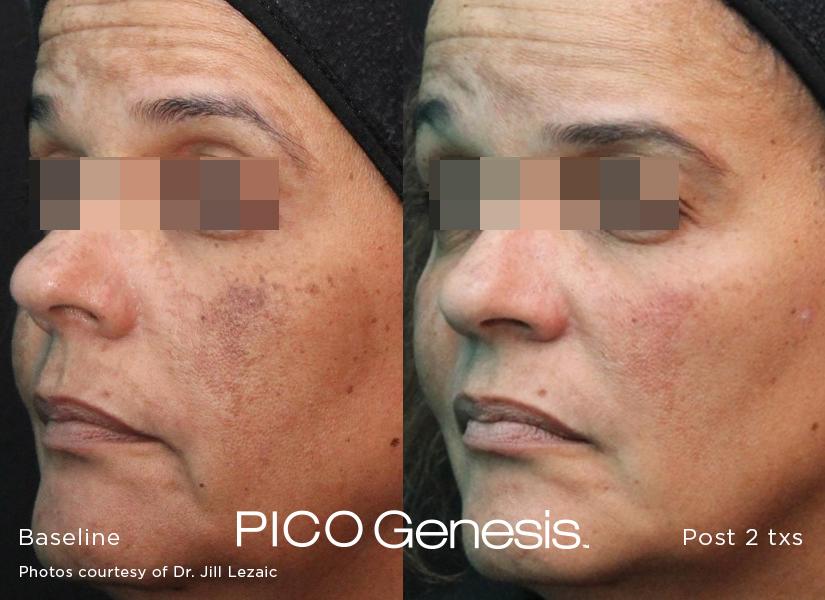 enlighten_pico genesis_6.jpg