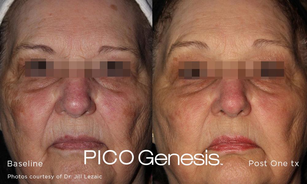 enlighten_pico genesis_9.jpg