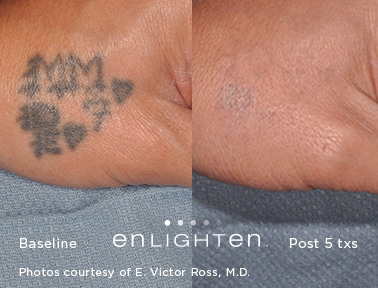 enlighten_Tattoo_Hand_12weekspost5tx.jpg