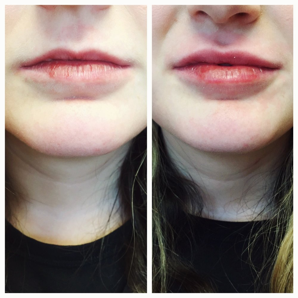 thin lip natural lip filler before and after