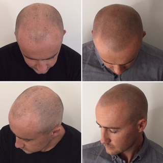 Scalp micropigmentation clinic melbourne smp tattoo for Hair tattoo cost