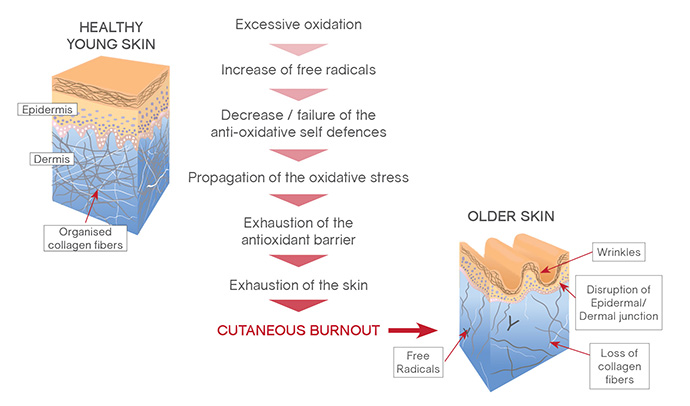 How Oxidative Stress affects Skin - Diagram