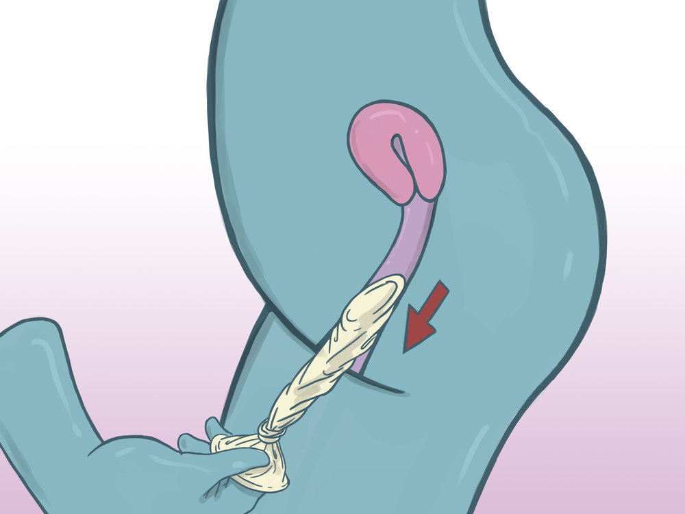 DO NOT REUSE A CONDOM. Use it once and throw it away. Change condoms when changing holes, partners, etc.