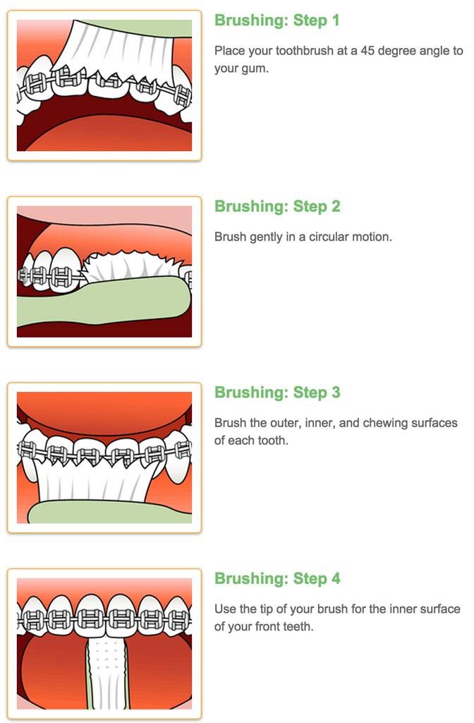 Braces care douglas nguyen orthodontics braces brushing instruction diagram 672x1024g ccuart Choice Image