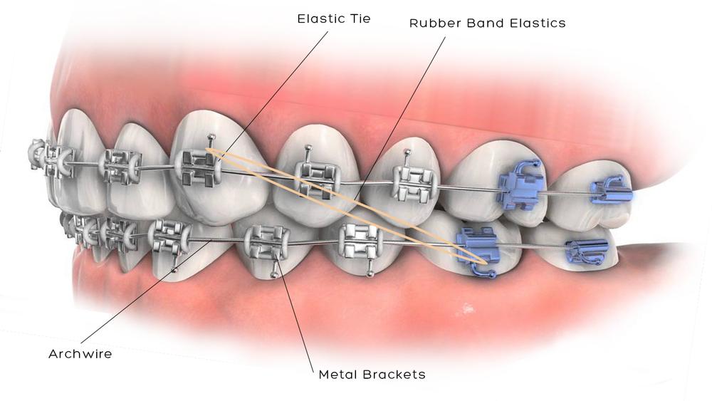 Braces Care Douglas Nguyen Orthodontics