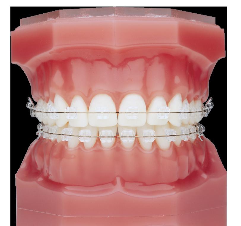 Braces Clear Wire | Braces Douglas Nguyen Orthodontics