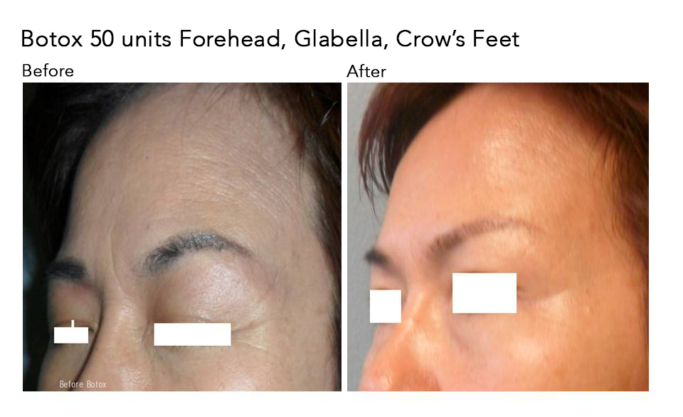 botox-forehead-glabella-crows-feet-1.png
