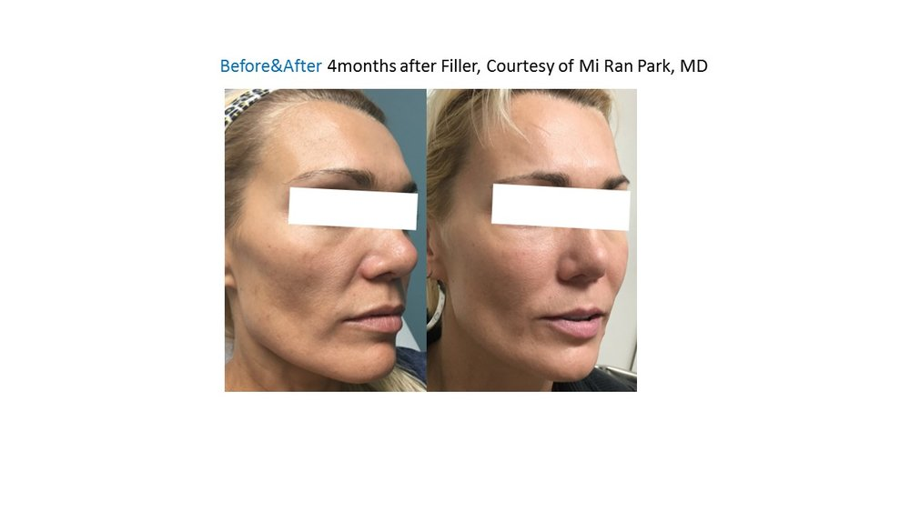 Filler CheekAugmentation, Looks Younger ,Sanjose