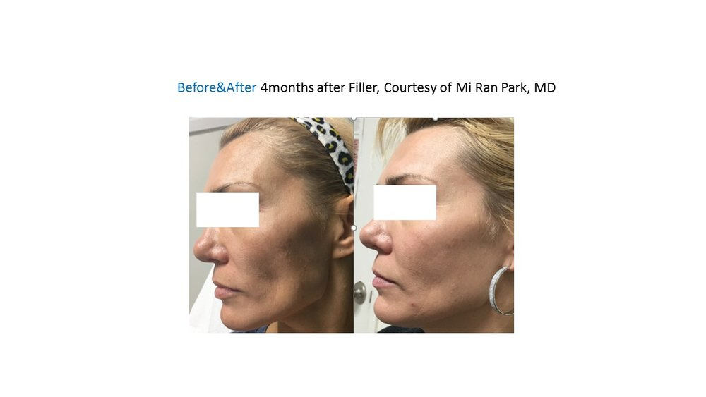Filler looks younger. Cheek augmentation.