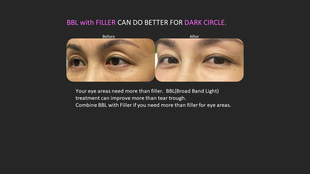Combined filler with bbl makes you look younger naturally.