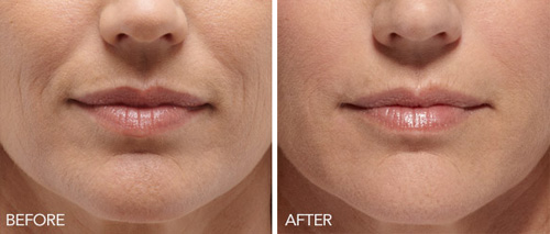 rejuvapen-microneedling-before-after.jpg