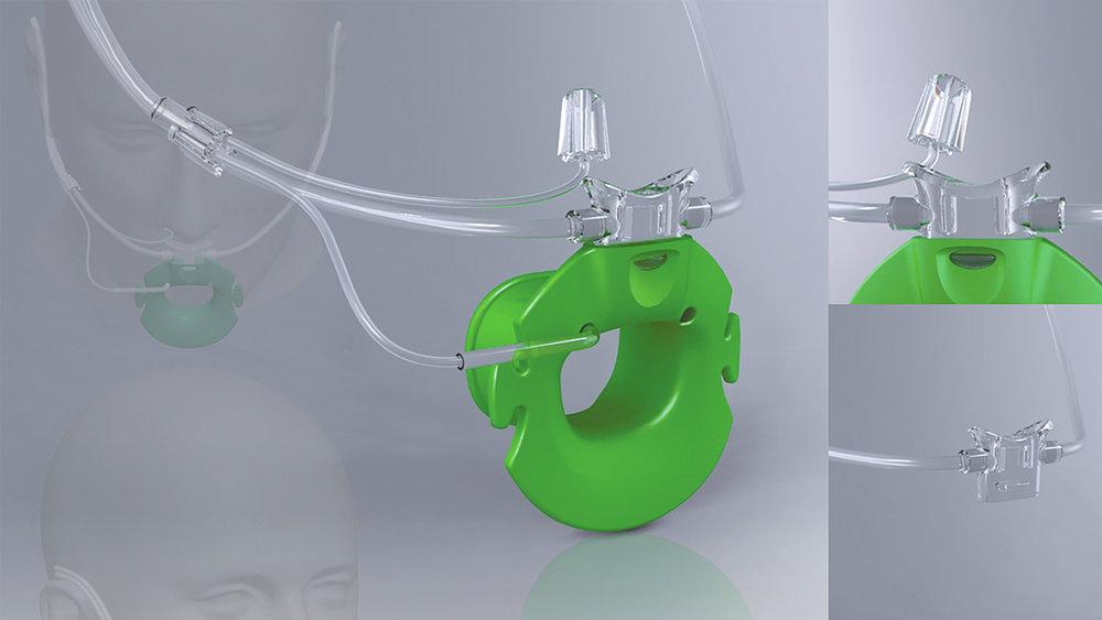 TRAWAX — Endoscope Biteblock (2008)